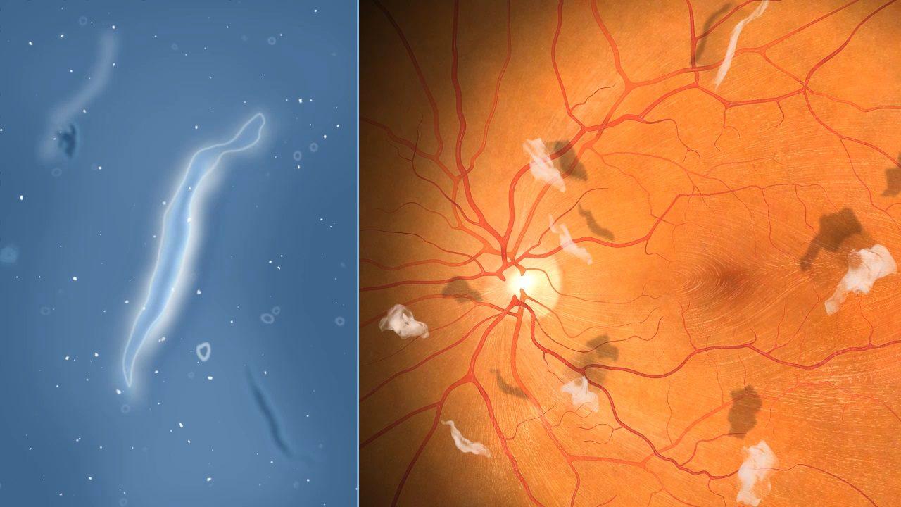 Bệnh vẩn đục dịch kính có nguy hiểm không? có chữa được không?